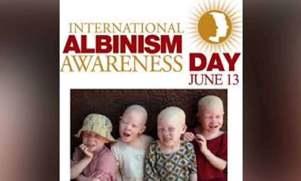 International Albinism Awareness