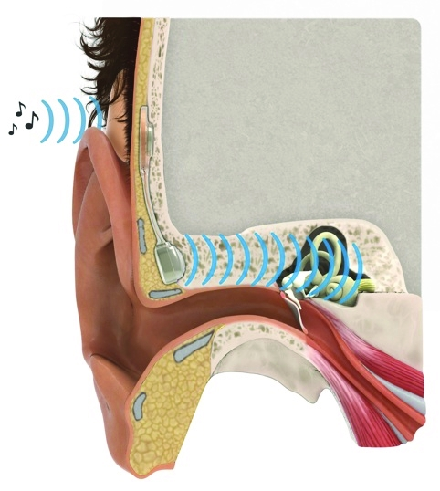 /n/o/v/TE_Chalmers_ear_implant2.jpg