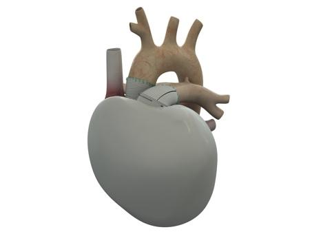 /a/l/y/TE_Carmat_artificial_heart1.jpg