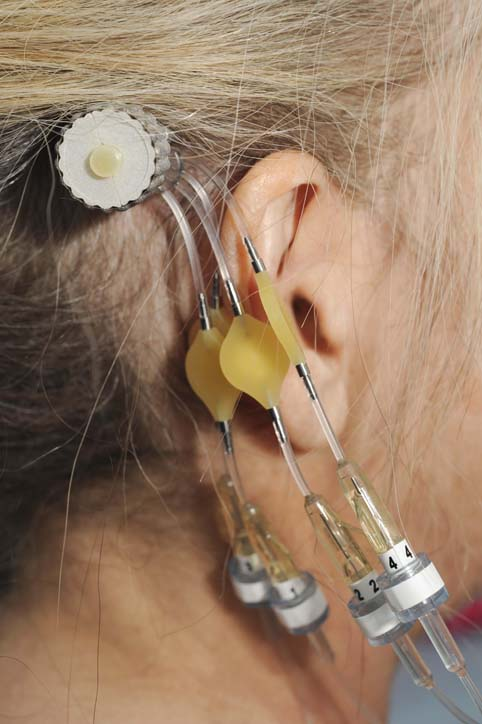 McMurtry was inspired by a bone-anchored hearing aid behind the ear