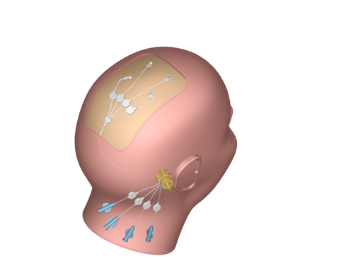 The Renishaw technique puts the drug on the other side of the blood-brain barrier