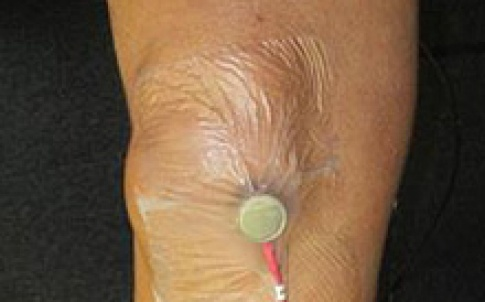 UK researchers have developed a device that identifies osteoarthritis through sounds emitted by the body