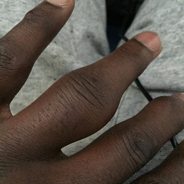 Кэм Ченселлор палец