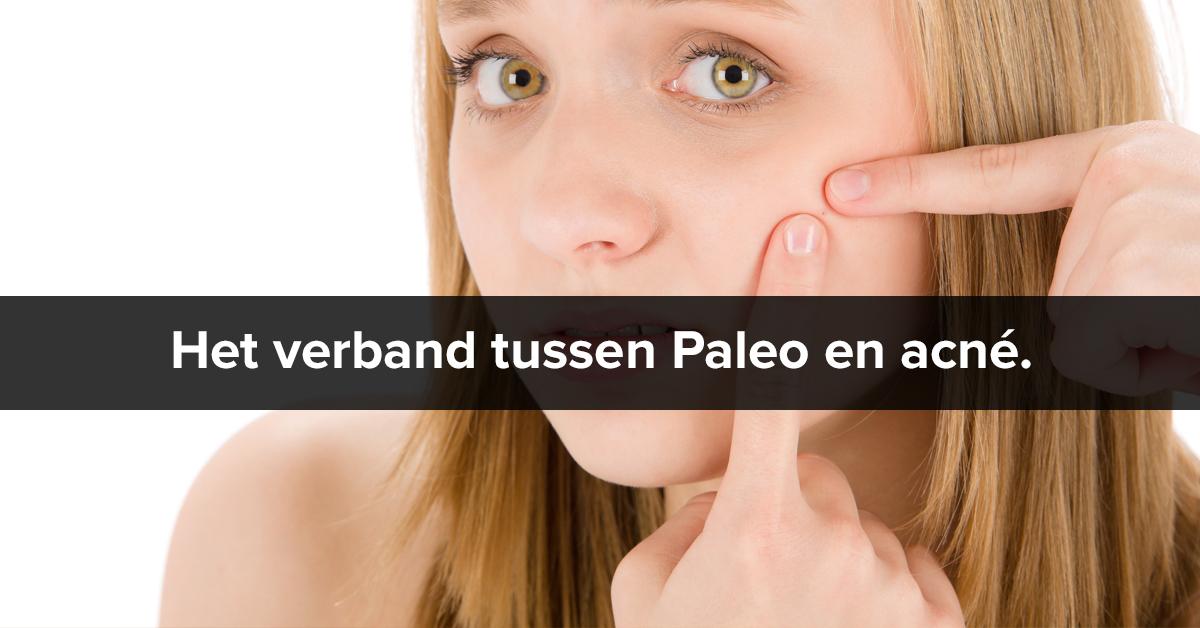 Paleo en acné