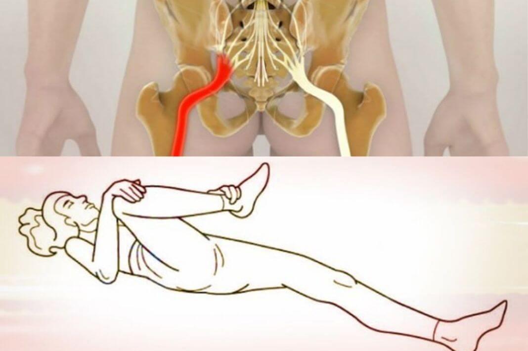 Как убрать мышечный блок в тазовом сегменте