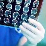 Brein snel oud door ploegendienst