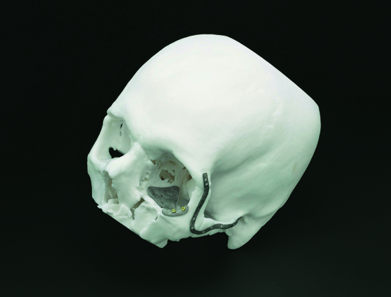 Maxillofacial implant used in reconstructive surgery on a 3D printed skull (Image courtesy The Science Museum, London/Jennie Hills/Renishaw Plc)