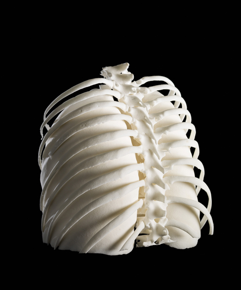 "Photograph of 3D printed lungs in a ribcage. The image was created by multimedia artist Dave Farnham for a friend who was undergoing chemotherapy. Farnham says his aim was to create ""something beautiful and tangible"" for her, using CT scans and other medical images"