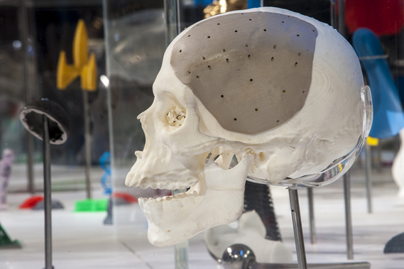 Maxillofacial implant at the 3D: Printing the Future show at the Museum of Science and Industry in Manchester. Image: MOSI/Jason Lawton