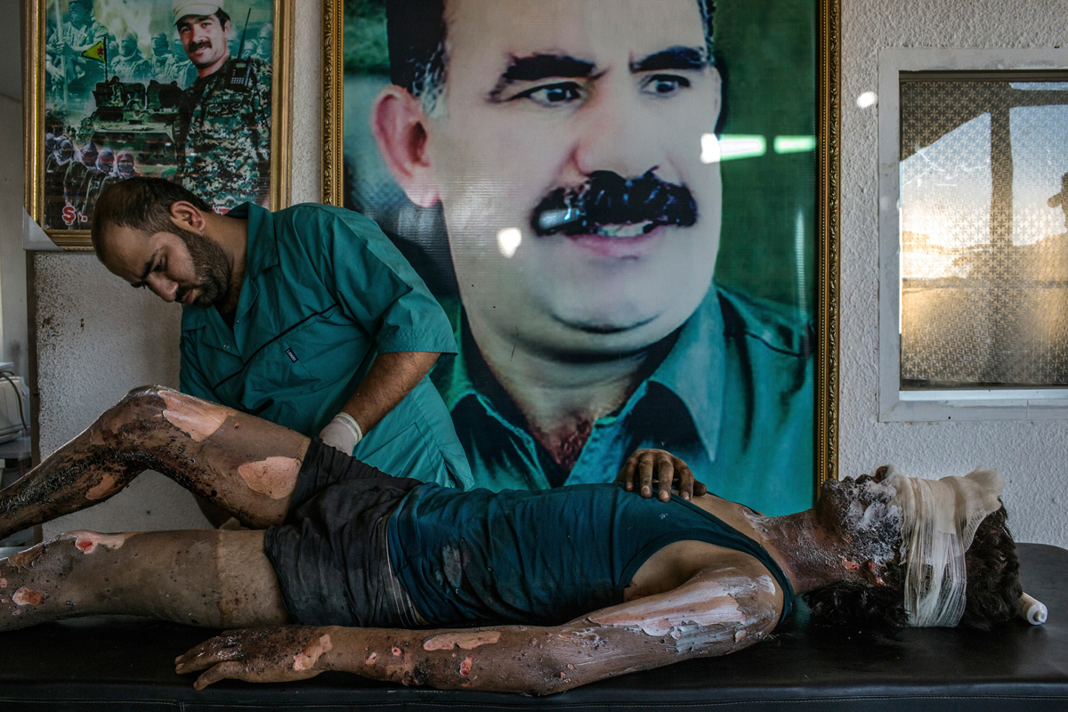 IS Fighter Treated at Kurdish Hospital, Mauricio Lima, Brazil, 2015 for The New York Times. A doctor rubs ointment on the burns of Jacob, 16, in front of a poster of Abdullah Ocalan, center, the jailed leader of the Kurdistan Workers' Party, at a YPG hospital compound on the outskirts of Hasaka, August 2015