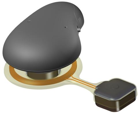 /f/n/a/TE_Chalmers_ear_implant1.jpg