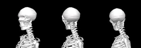 /i/b/y/TE_skeleton.jpg