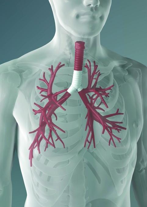 /l/p/u/TE_UCL_trachea.jpg