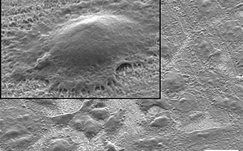 Cells show signs of healthy growth in this transmission electron microscope image, taken 15 hours after the cells were placed on a titanium surface coated with a carpet of tiny nanowires. In the inset (upper left), filaments can be seen reaching out from