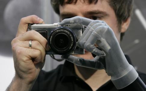 Touch Bionics iLimb