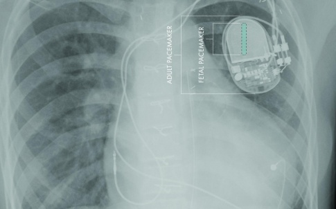 Image shows the comparative sizes of foetal and adult pacemakers.