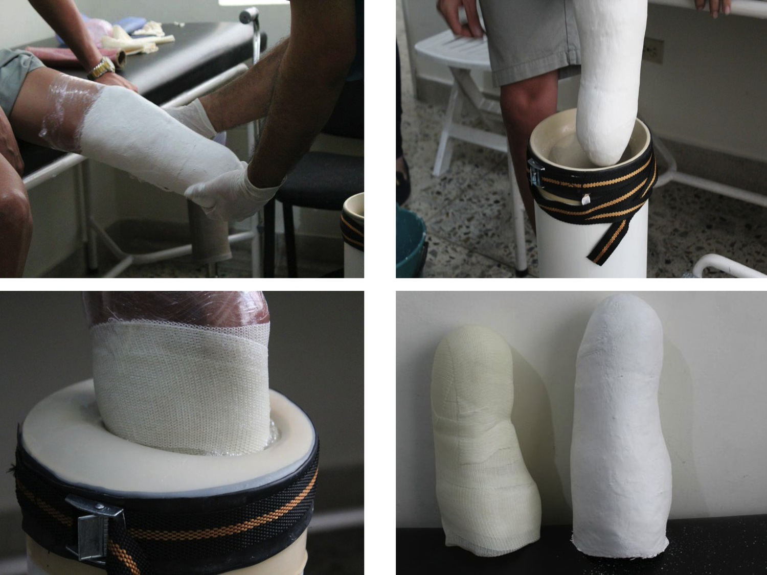 Majicast captures the unique shape of lower residual limbs with the use of plaster bandages or other direct casting material