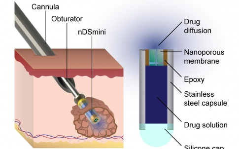 The nDSmini nanofluidic device, shown in section and being implanted.