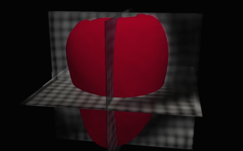 Heart_AI