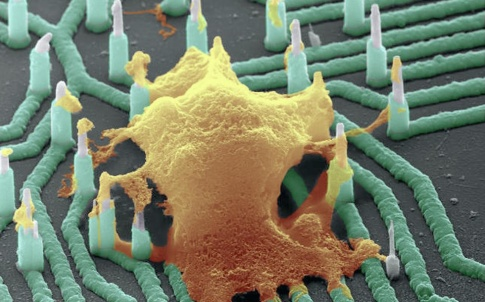 A neuron (orange) interfaced with the nanowire array (Credit: Integrated Electronics and Biointerfaces Laboratory, UC San Diego)