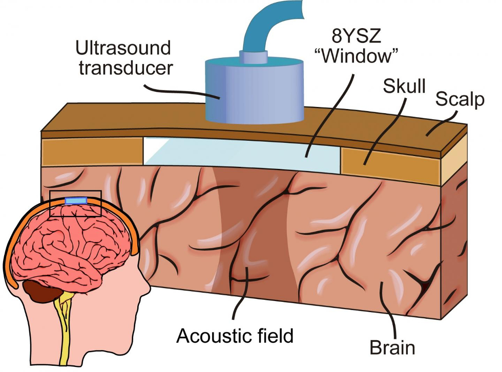 Ceramic cranial implant gives ultrasound access to brain (UC Riverside)