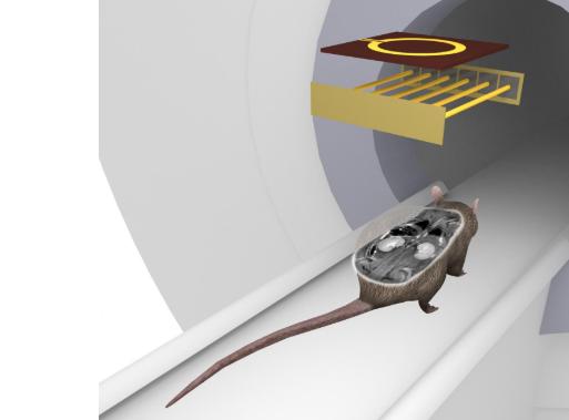 MRI coil