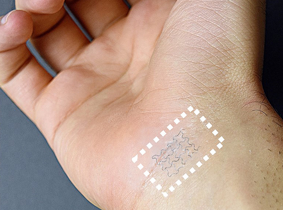Epidermal electronic device sticks to task of monitoring health