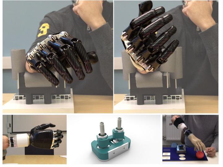 prosthetic implant