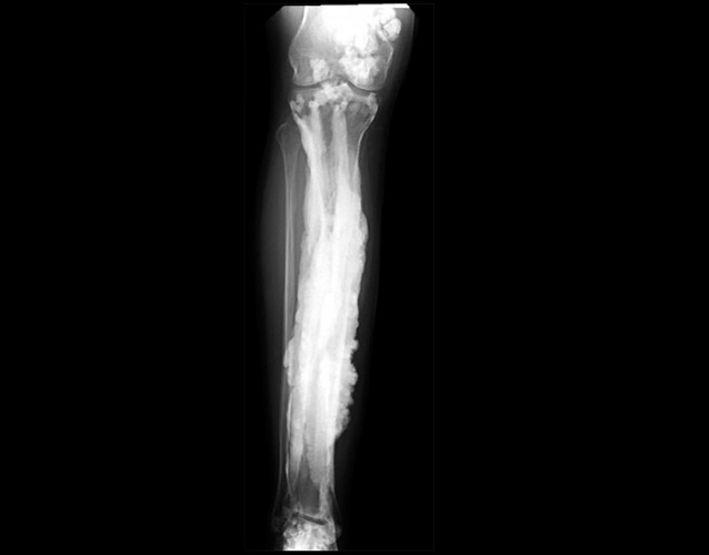Bioactive glass implant uses copper to fight bone infection