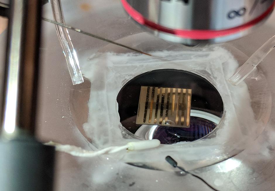 Quantum material may help detect brain disease