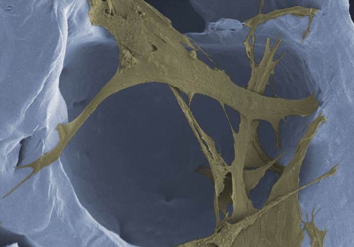 Curry power is key to wound healing foam | The Engineer The