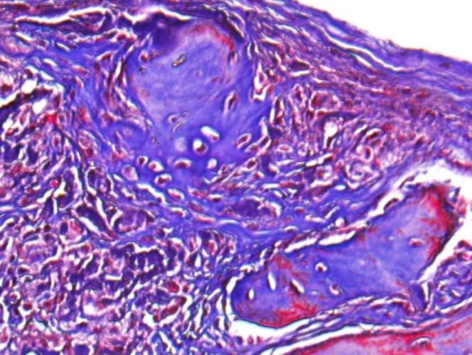 Clay-enhanced hydrogel promotes bone healing