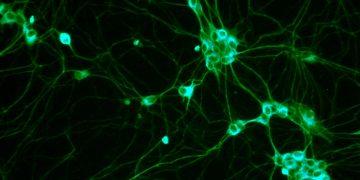 Kök Hücre keşfi, biliminsanlarının çocuk düşüklerinin sebebini anlamasına yardımcı olabilir