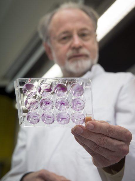 Onderzoeker met een schaaltje met gekweekte tumorcellen