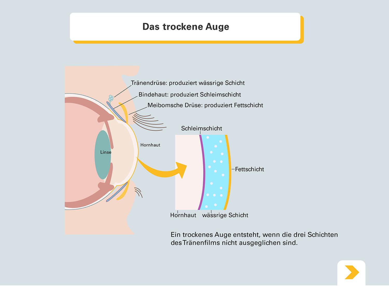 Erklärung zu trockenen Augen - Grafische Darstellung