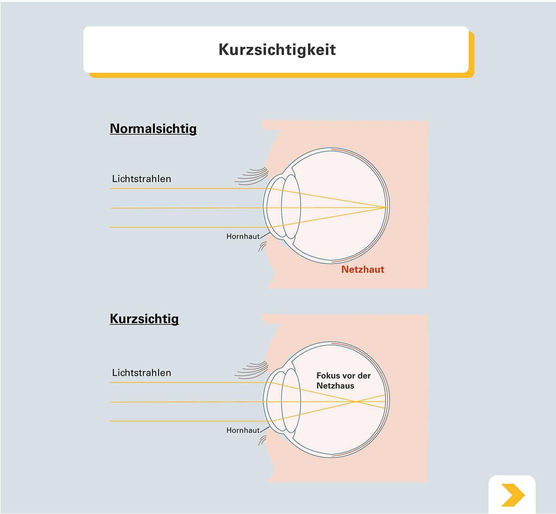 Vergleich Normalsichtigkeit und Kurzsichtigkeit - Grafische Darstellung