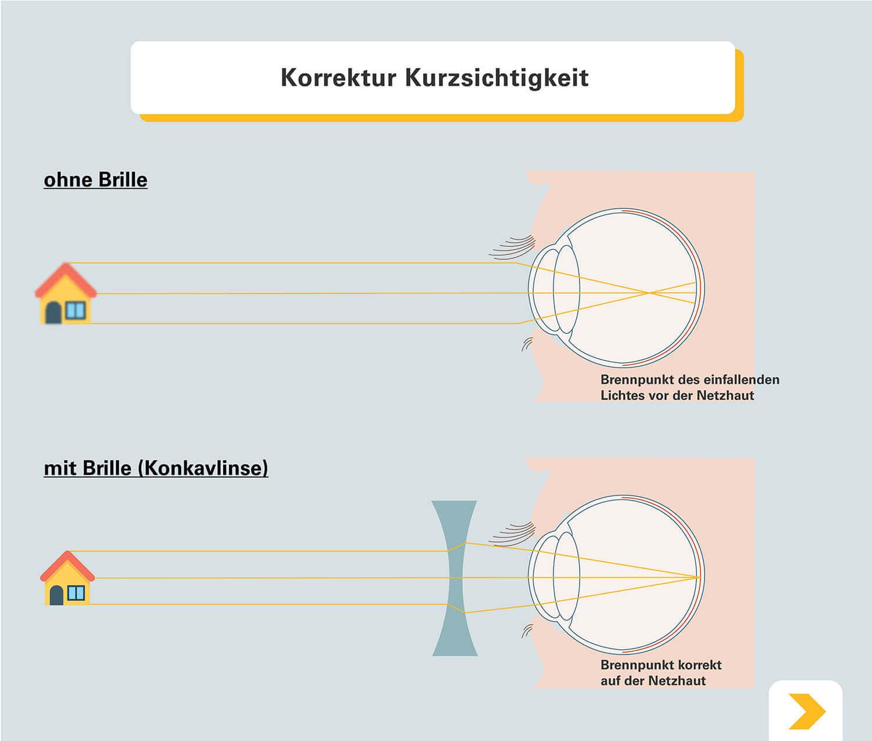 Korrektur der Kurzsichtigkeit mit einer Brille - Grafische Darstellung