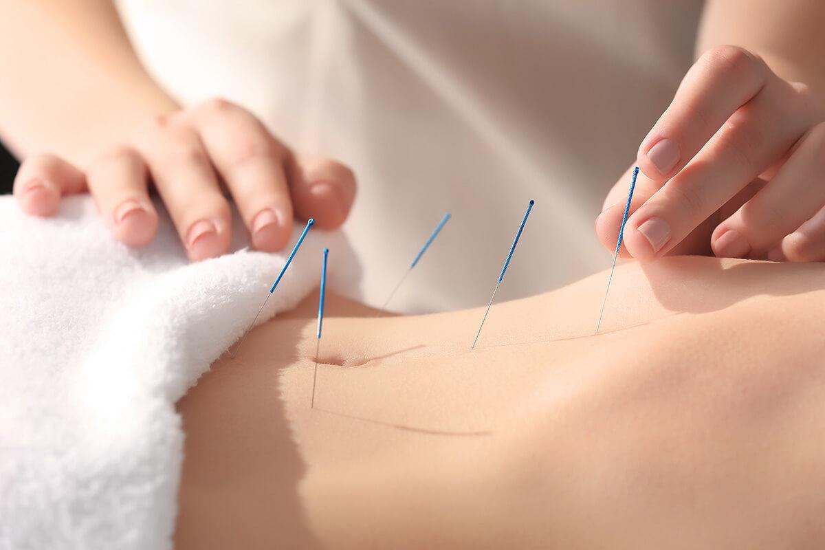 Heilpraktikerin setzt Akupunkturnadeln am Bauch einer Frau.