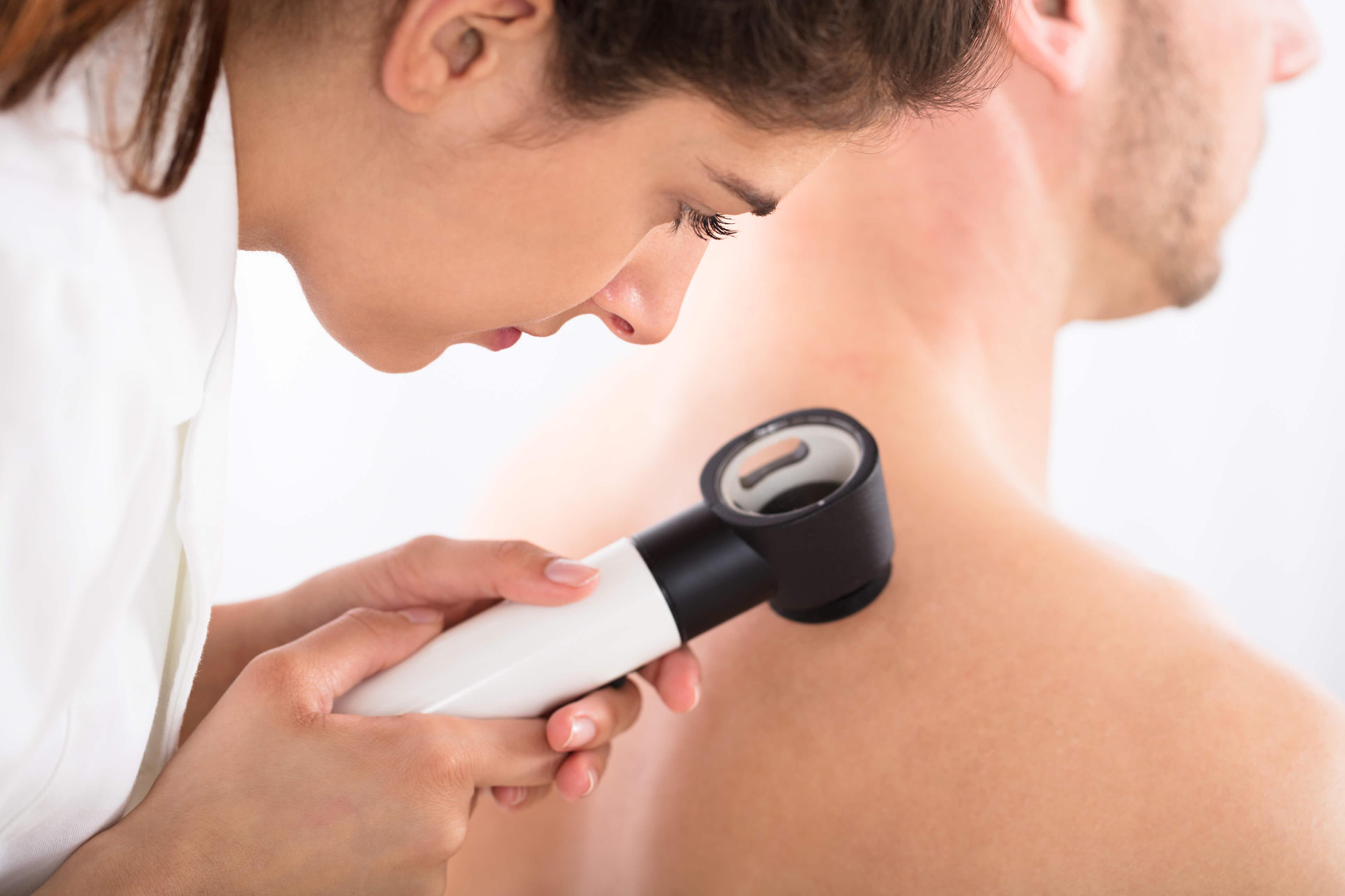 Hautaerztin untersucht einen Mann bei der Hautkrebsvorsorge.