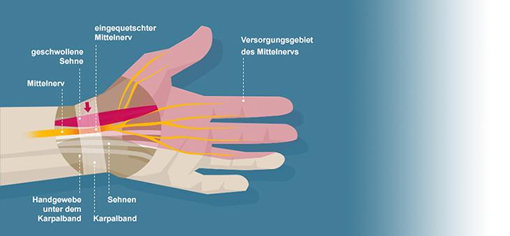 Karpaltunnelsyndrom-Darstellung-Handverletzungen