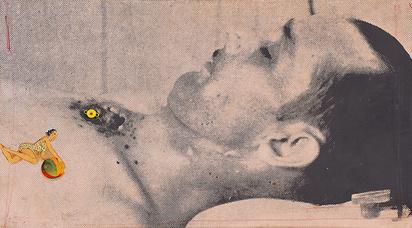 "Spoerri Daniel, Totlachen (crever de rire), from the cycle ""Criminal Investigations"""