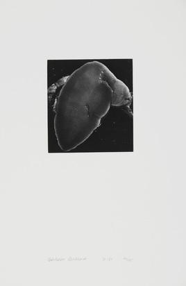 Burkhard Balthasar, 2 Fotografien: Hand, 1991; Schnecke