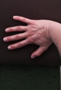 pijnlijke polsen 3