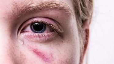 Vold i hjemmet: Google forbyder reklamer for stalkerware