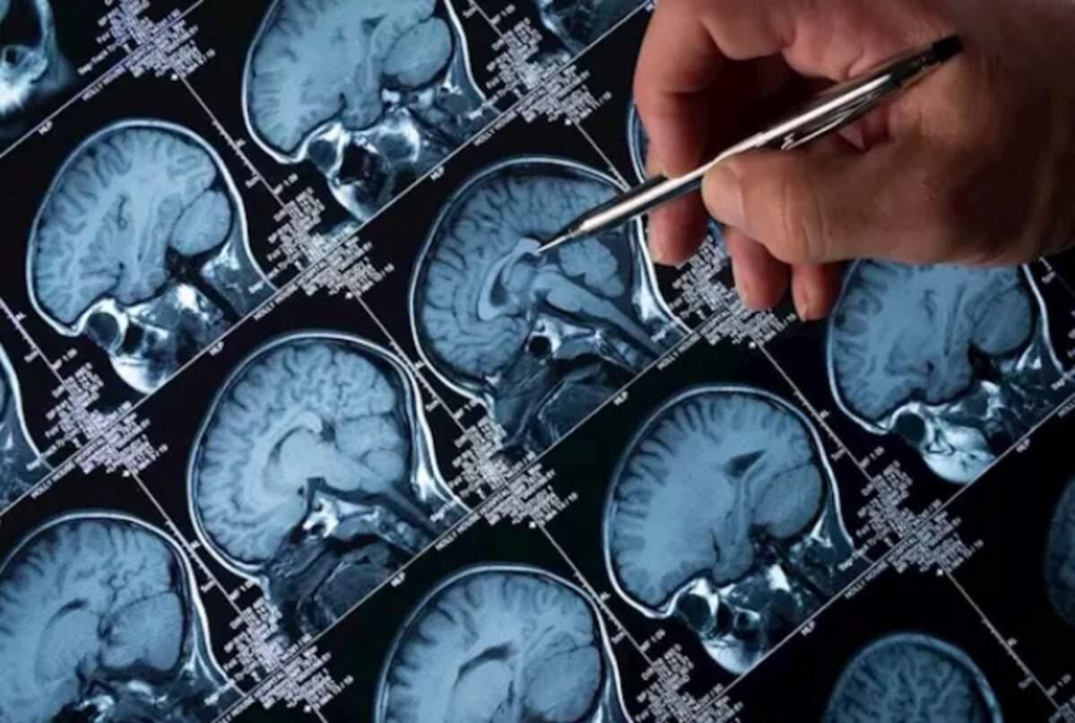 Escàner cerebral  | iStock