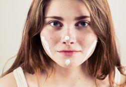 acne: i rimedi naturali