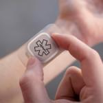 Dialog, un innovativo dispositivo per assistere i pazienti con epilessia | Pazienti.it