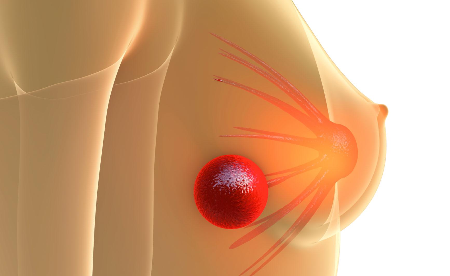 Cancro al seno: i segnali di pericolo | Pazienti.it