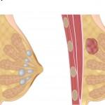 Un eccezionale esperimento sul cancro al seno per combatterlo in soli 11 giorni | Pazienti.it
