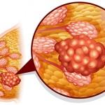Tumore al seno: l'autopalpazione e i test di screening | Pazienti.it